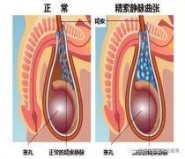 精索静脉曲张手术后需要注意哪些